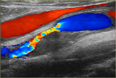 чистка сонных артерий от бляшек и кальция